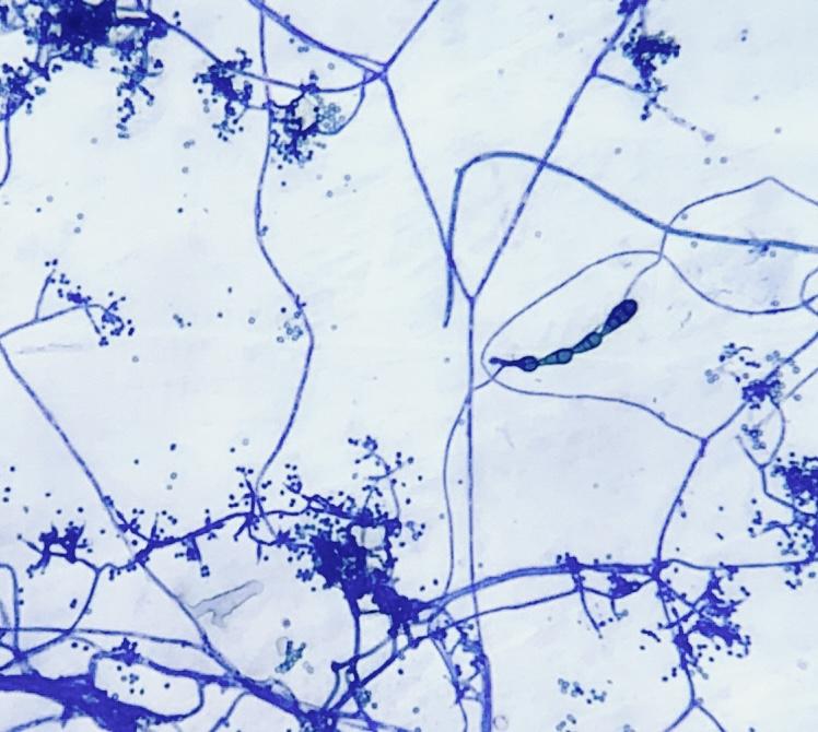 Hongos fitopatógenos. Un desafío en la productividad
